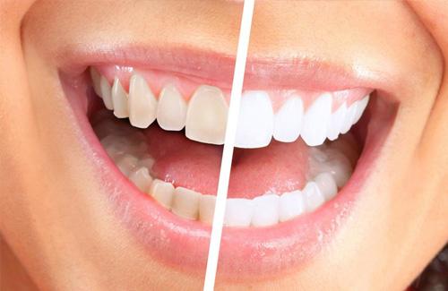 Clareamento dentário Dalboni Odontologia