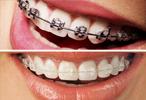 Ortodontia Dalboni Odontologia