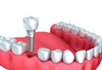 Implantodontia Dalboni Odontologia